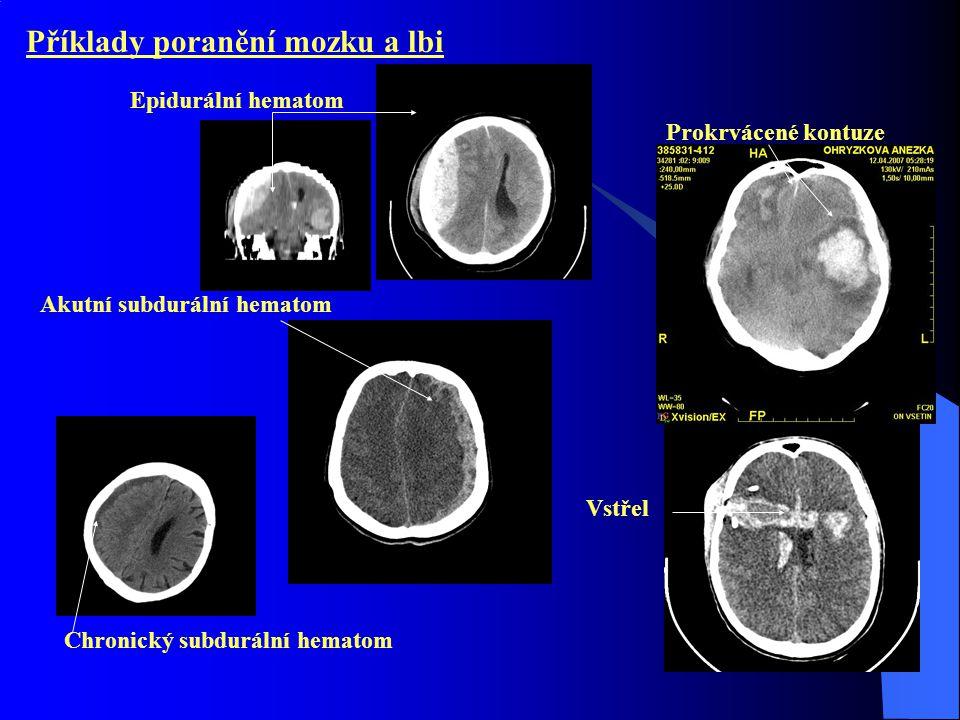 Příklady poranění mozku a lbi Epidurální hematom Akutní subdurální hematom Chronický subdurální hematom Prokrvácené kontuze Vstřel