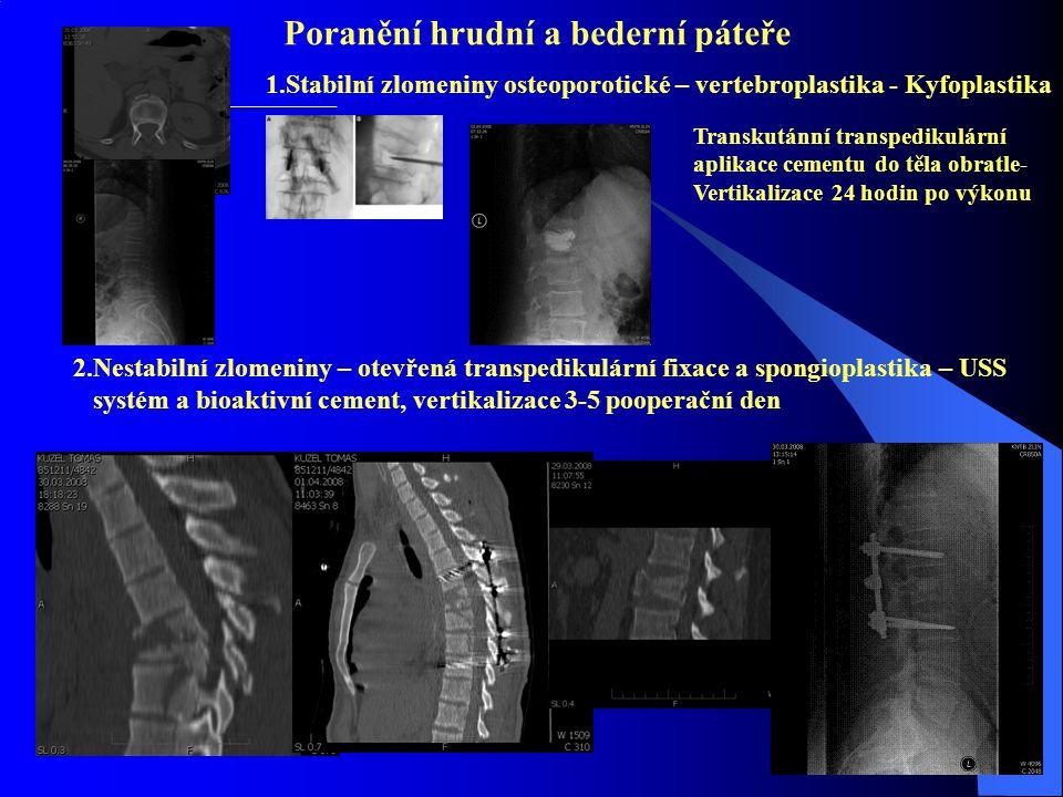 Poranění hrudní a bederní páteře 1.Stabilní zlomeniny osteoporotické – vertebroplastika - Kyfoplastika Transkutánní transpedikulární aplikace cementu