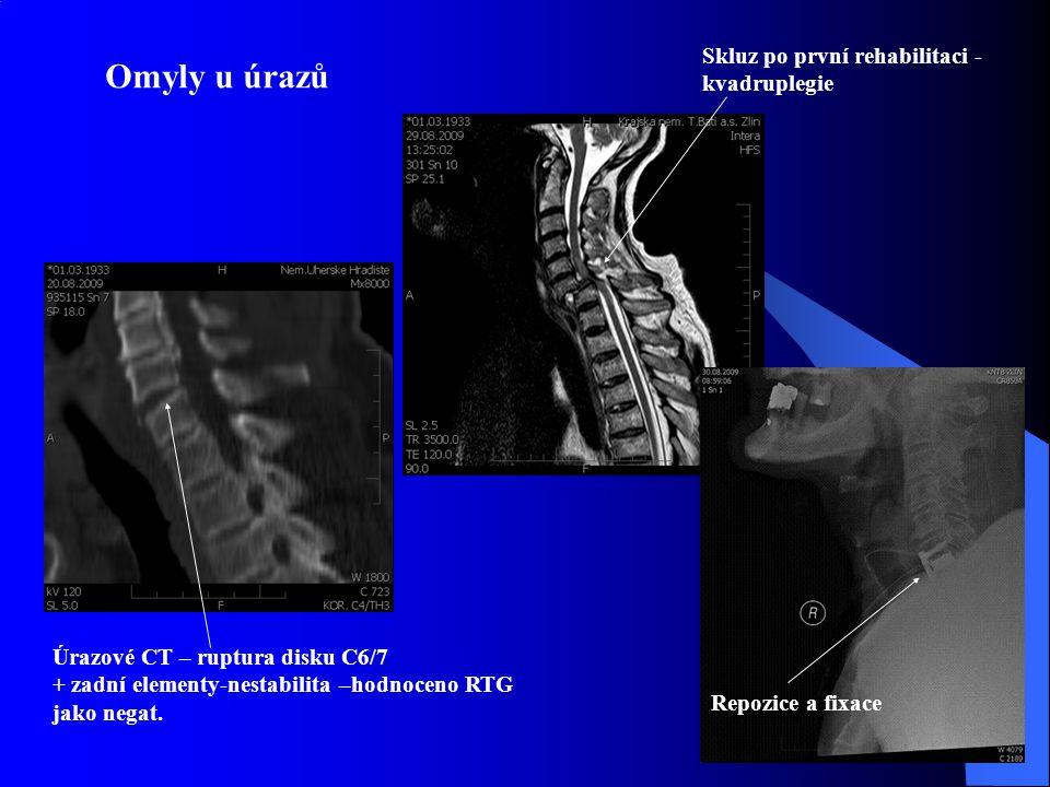 Omyly u úrazů Úrazové CT – ruptura disku C6/7 + zadní elementy-nestabilita –hodnoceno RTG jako negat. Skluz po první rehabilitaci - kvadruplegie Repoz