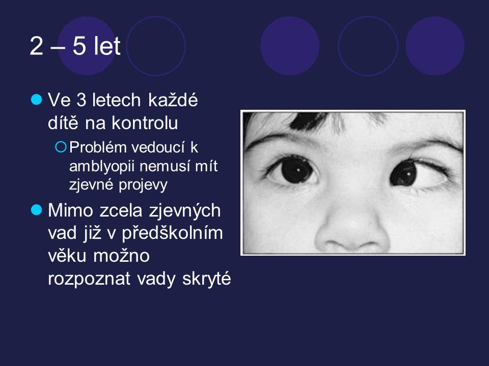 2 – 5 let  Ve 3 letech každé dítě na kontrolu  Problém vedoucí k amblyopii nemusí mít zjevné projevy  Mimo zcela zjevných vad již v předškolním věku možno rozpoznat vady skryté