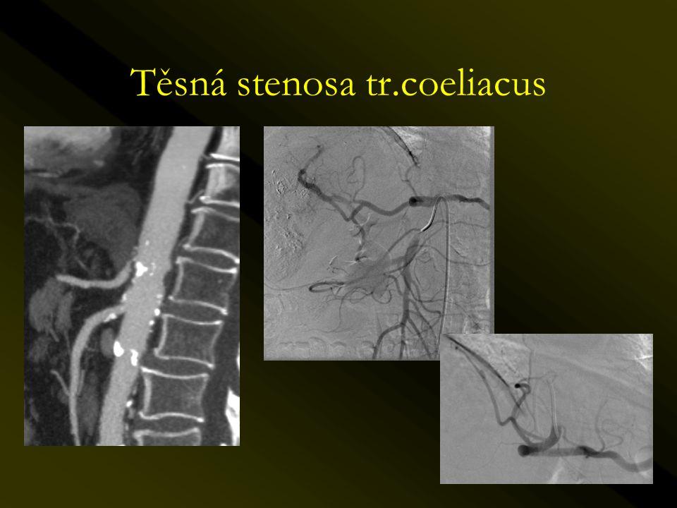 Těsná stenosa tr.coeliacus