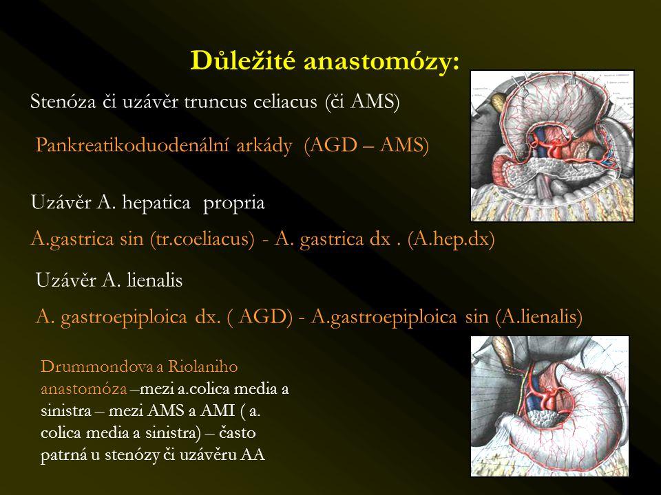 Důležité anastomózy: Stenóza či uzávěr truncus celiacus (či AMS) Pankreatikoduodenální arkády (AGD – AMS) Uzávěr A. hepatica propria A.gastrica sin (t