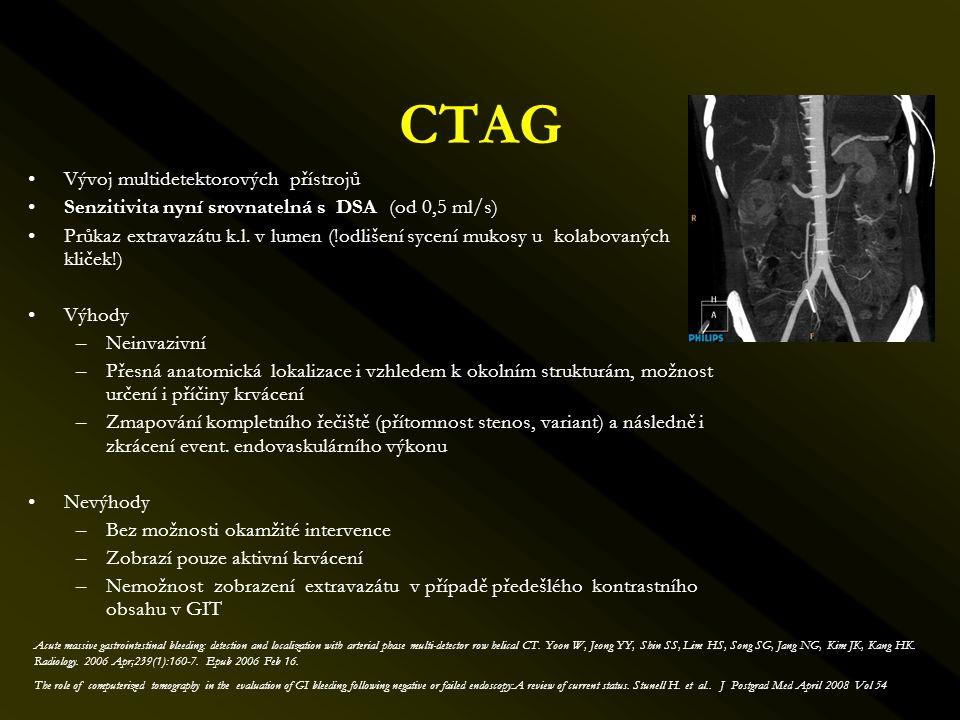 CTAG •Vývoj multidetektorových přístrojů •Senzitivita nyní srovnatelná s DSA (od 0,5 ml/s) •Průkaz extravazátu k.l. v lumen (!odlišení sycení mukosy u