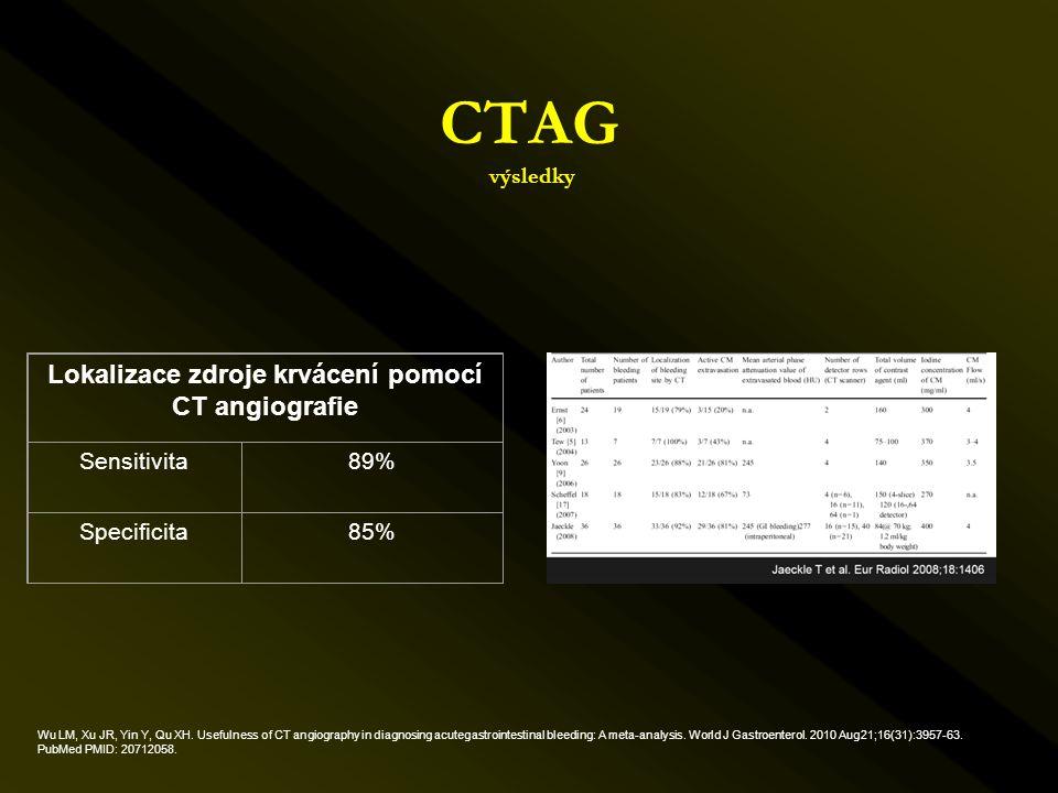 CTAG výsledky Lokalizace zdroje krvácení pomocí CT angiografie Sensitivita89% Specificita85% Wu LM, Xu JR, Yin Y, Qu XH. Usefulness of CT angiography