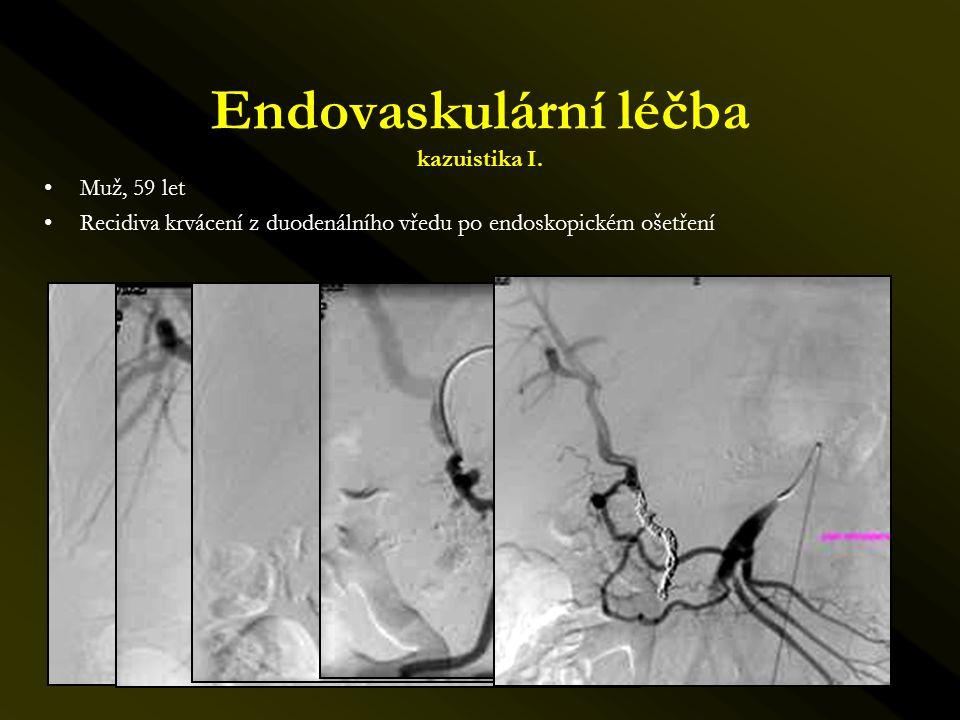 Endovaskulární léčba kazuistika I. •Muž, 59 let •Recidiva krvácení z duodenálního vředu po endoskopickém ošetření
