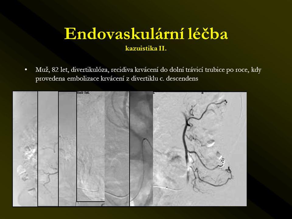 Endovaskulární léčba kazuistika II. •Muž, 82 let, divertikulóza, recidiva krvácení do dolní trávicí trubice po roce, kdy provedena embolizace krvácení