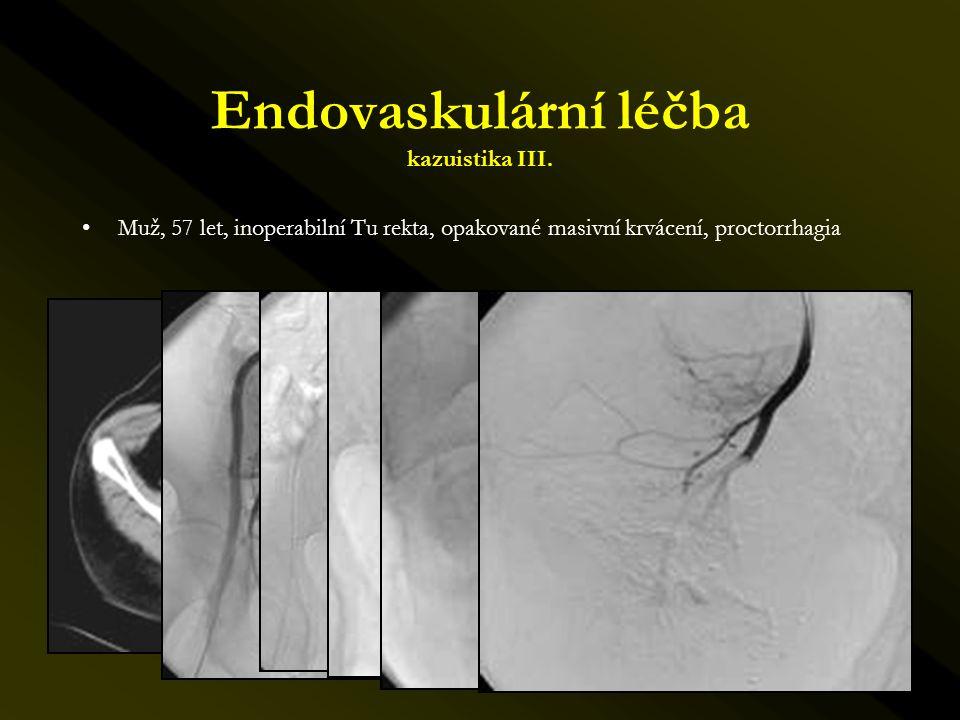 Endovaskulární léčba kazuistika III. •Muž, 57 let, inoperabilní Tu rekta, opakované masivní krvácení, proctorrhagia