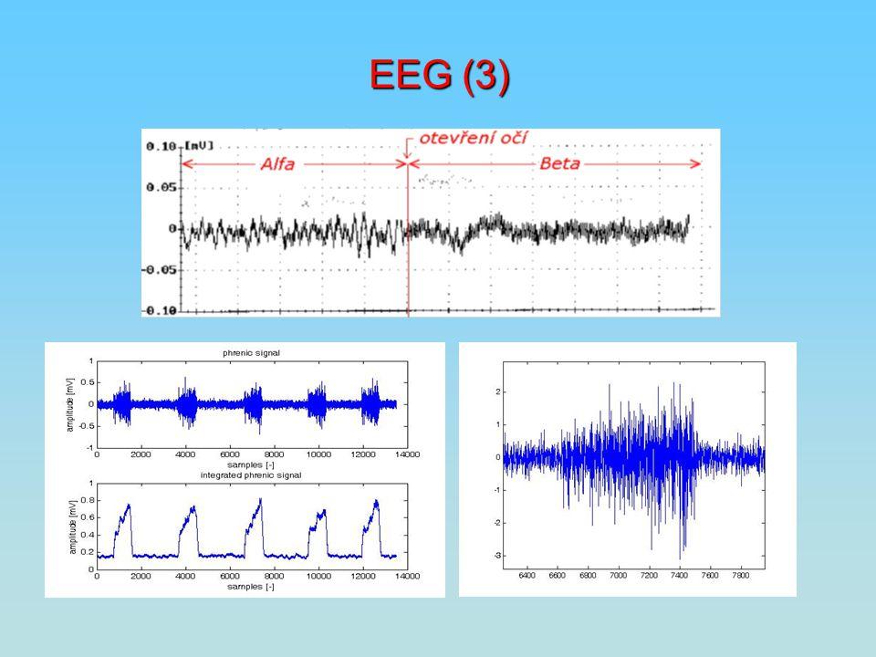 EEG (3)