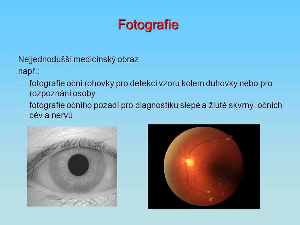 Fotografie Nejjednodušší medicínský obraz. např.: -fotografie oční rohovky pro detekci vzoru kolem duhovky nebo pro rozpoznání osoby -fotografie očníh