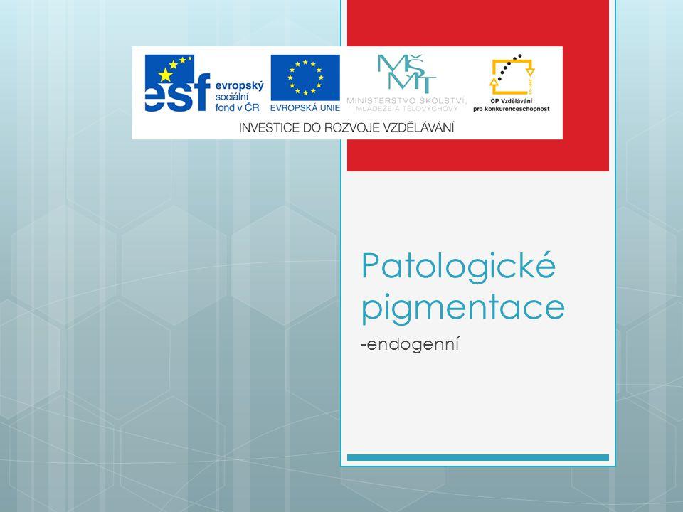 Patologické pigmentace -endogenní
