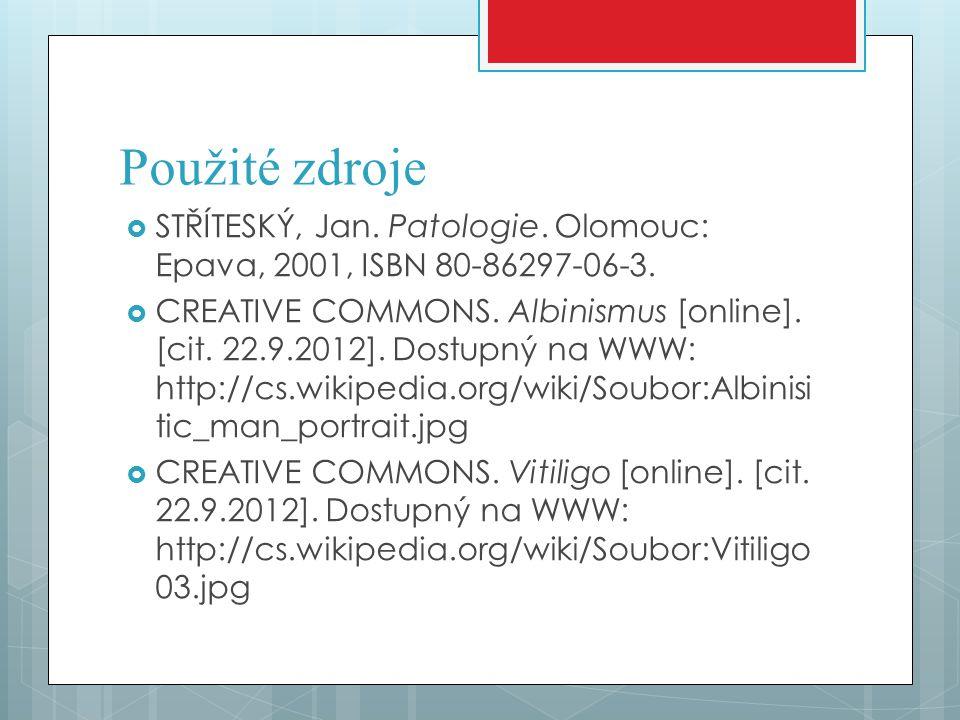 Použité zdroje  STŘÍTESKÝ, Jan. Patologie. Olomouc: Epava, 2001, ISBN 80-86297-06-3.  CREATIVE COMMONS. Albinismus [online]. [cit. 22.9.2012]. Dostu