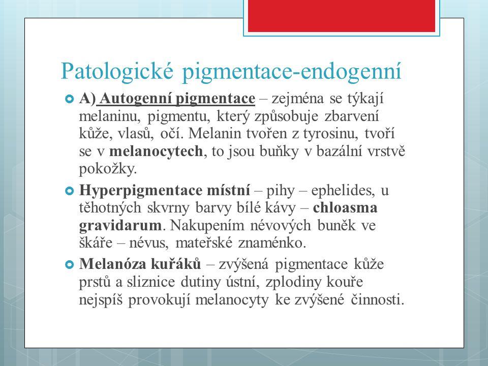 Patologické pigmentace-endogenní  A) Autogenní pigmentace – zejména se týkají melaninu, pigmentu, který způsobuje zbarvení kůže, vlasů, očí. Melanin