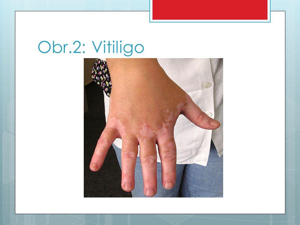 Obr.2: Vitiligo