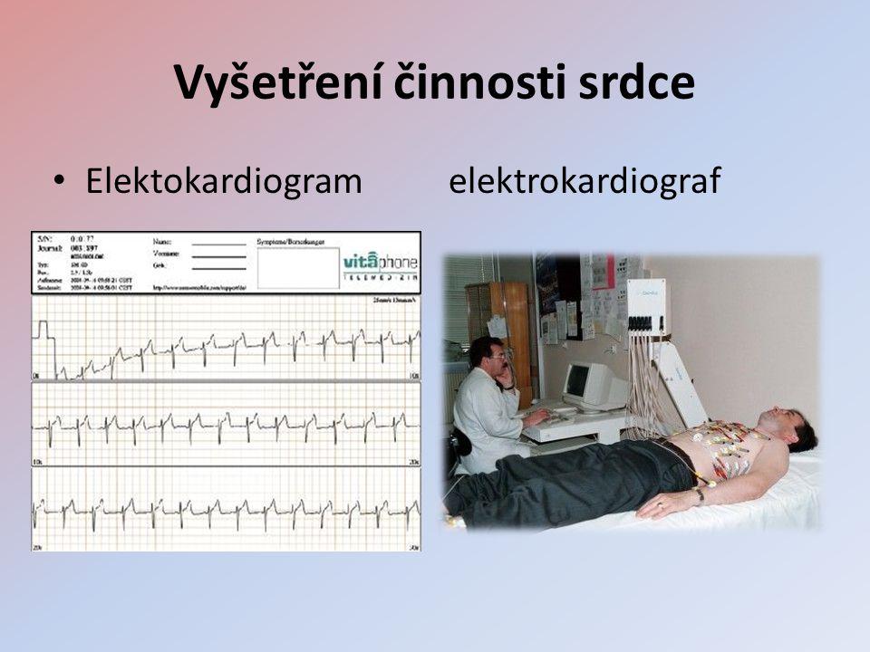 Vyšetření činnosti srdce • Elektokardiogram elektrokardiograf