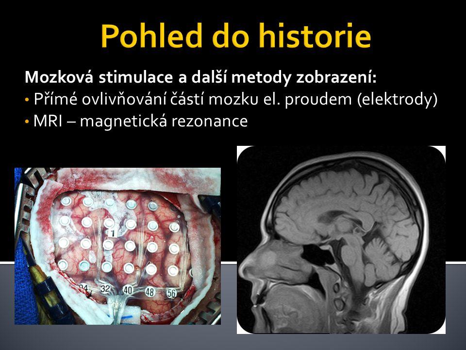 Mozková stimulace a další metody zobrazení: • Přímé ovlivňování částí mozku el. proudem (elektrody) • MRI – magnetická rezonance