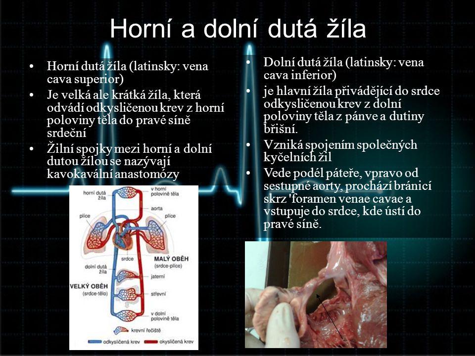 Horní a dolní dutá žíla •Horní dutá žíla (latinsky: vena cava superior) •Je velká ale krátká žíla, která odvádí odkysličenou krev z horní poloviny těl