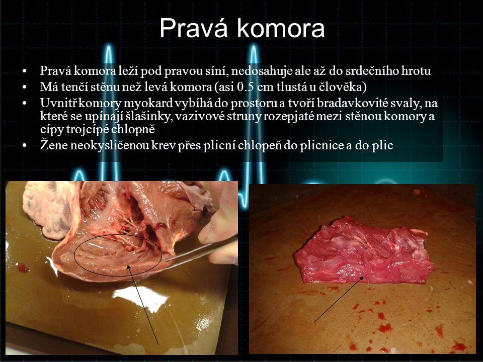 Pravá komora •Pravá komora leží pod pravou síní, nedosahuje ale až do srdečního hrotu •Má tenčí stěnu než levá komora (asi 0.5 cm tlustá u člověka) •U