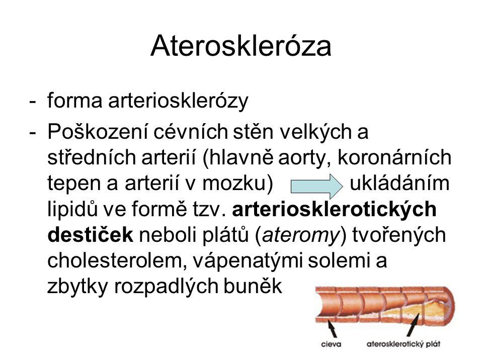 Ateroskleróza -forma arteriosklerózy -Poškození cévních stěn velkých a středních arterií (hlavně aorty, koronárních tepen a arterií v mozku) ukládáním