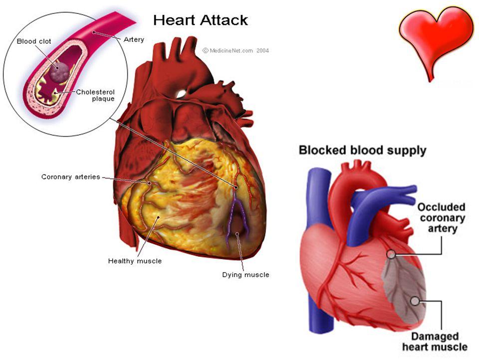 Příčiny infarktu myokardu