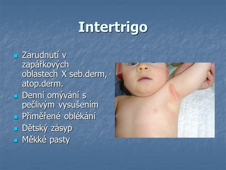 Intertrigo  Zarudnutí v zapářkových oblastech X seb.derm, atop.derm.  Denní omývání s pečlivým vysušením  Přiměřené oblékání  Dětský zásyp  Měkké