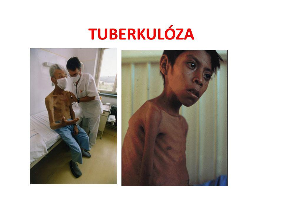 ZÁVAŽNÁ ONEMOCNĚNÍ • Zápal plic • Tuberkulóza způsobují viry, bakterie • Rakovina plic