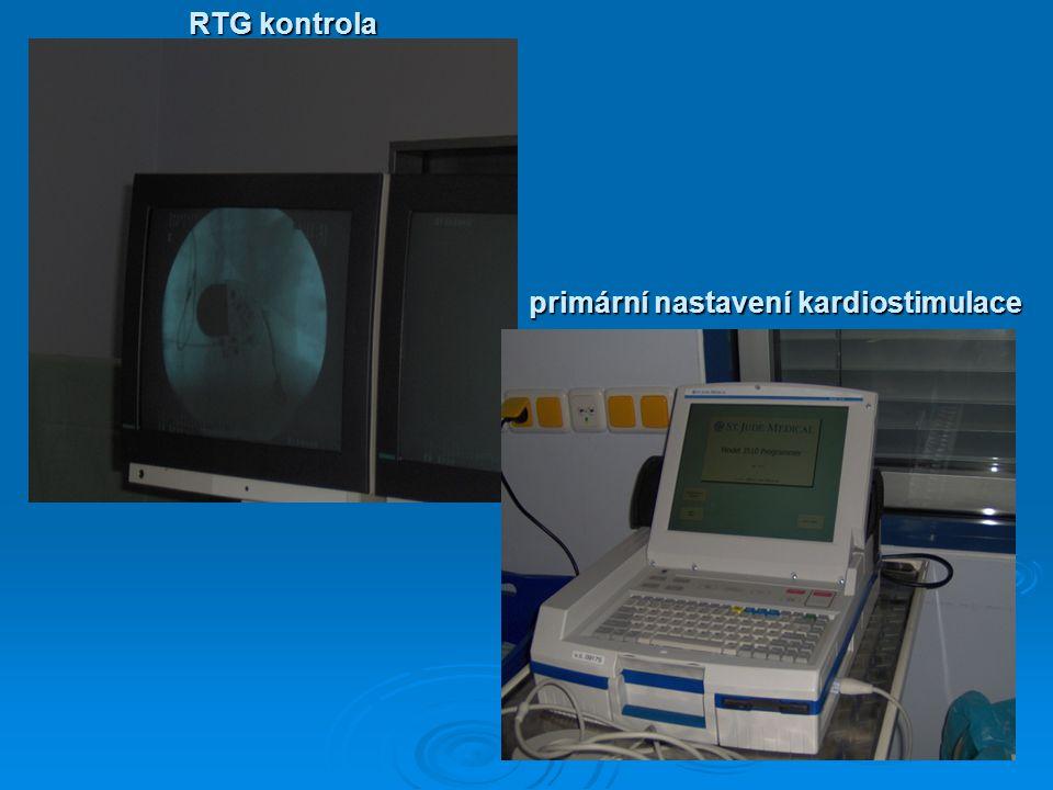 RTG kontrola primární nastavení kardiostimulace