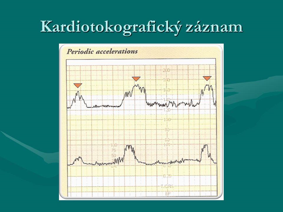 Kardiotokografický záznam