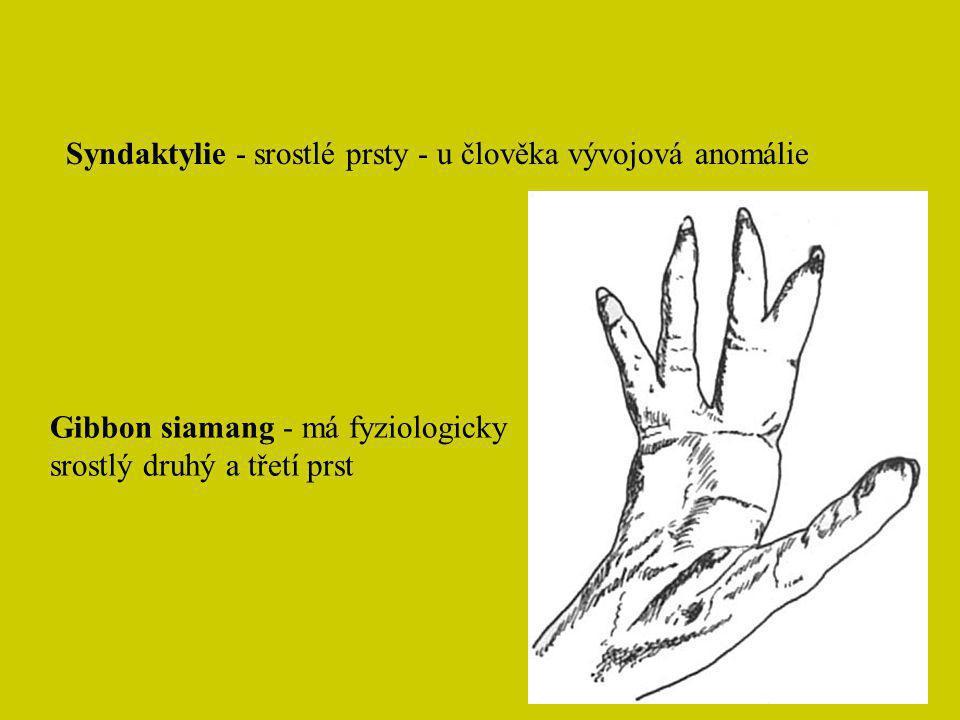 Syndaktylie - srostlé prsty - u člověka vývojová anomálie Gibbon siamang - má fyziologicky srostlý druhý a třetí prst