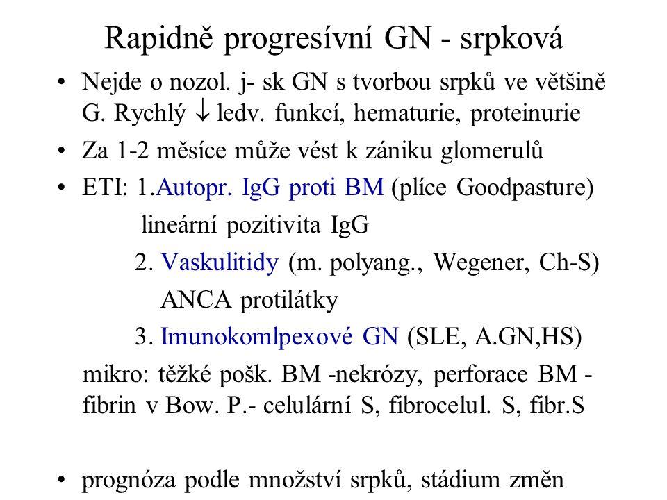 Rapidně progresívní GN - srpková •Nejde o nozol. j- sk GN s tvorbou srpků ve většině G. Rychlý  ledv. funkcí, hematurie, proteinurie •Za 1-2 měsíce m