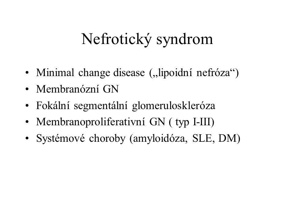 """Nefrotický syndrom •Minimal change disease (""""lipoidní nefróza"""") •Membranózní GN •Fokální segmentální glomeruloskleróza •Membranoproliferativní GN ( ty"""
