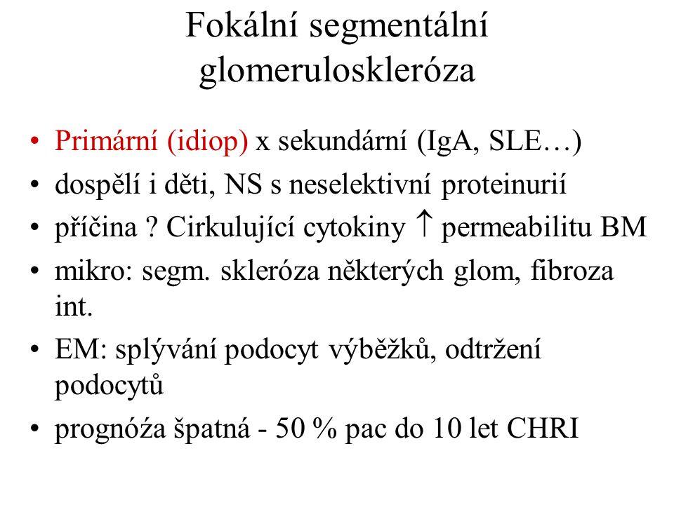 Fokální segmentální glomeruloskleróza •Primární (idiop) x sekundární (IgA, SLE…) •dospělí i děti, NS s neselektivní proteinurií •příčina ? Cirkulující