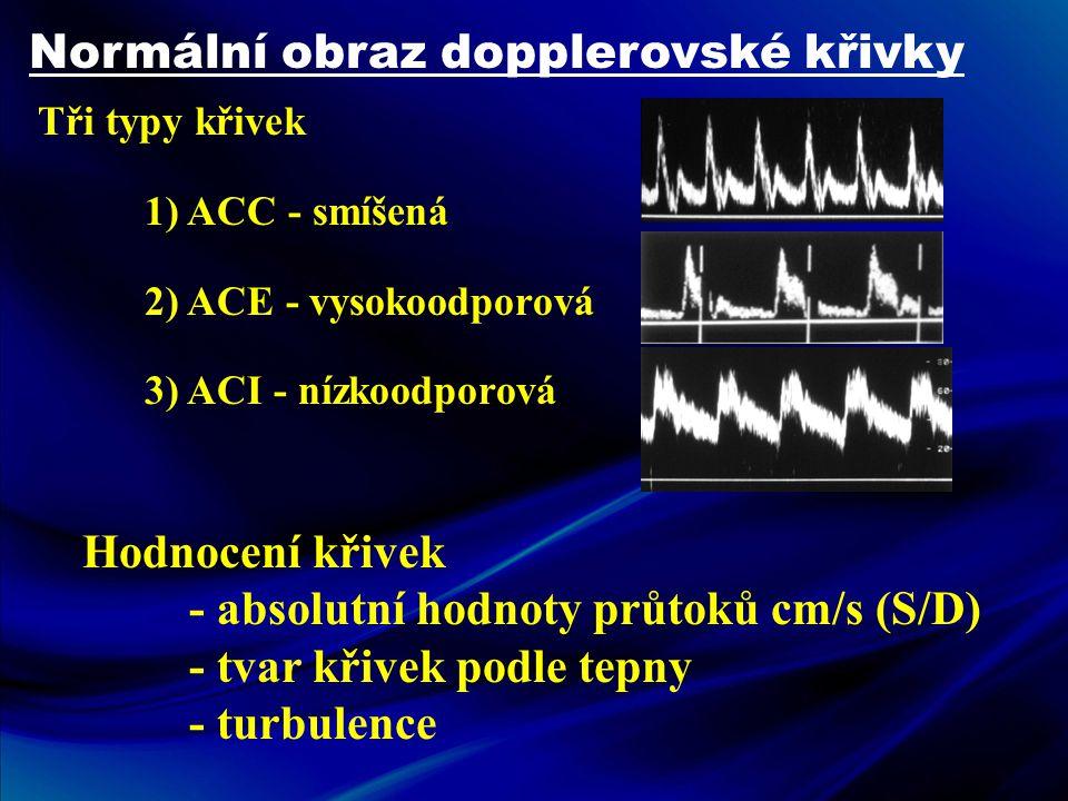 Normální obraz dopplerovské křivky Tři typy křivek 1) ACC - smíšená 2) ACE - vysokoodporová 3) ACI - nízkoodporová Hodnocení křivek - absolutní hodnot