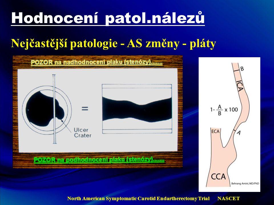 Hodnocení patol.nálezů Nejčastější patologie - AS změny - pláty NASCET North American Symptomatic Carotid Endartherectomy Trial