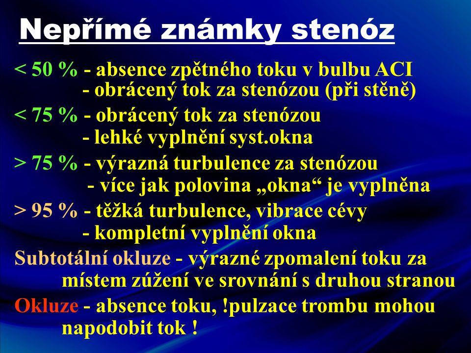Nepřímé známky stenóz < 50 % - absence zpětného toku v bulbu ACI - obrácený tok za stenózou (při stěně) < 75 % - obrácený tok za stenózou - lehké vypl