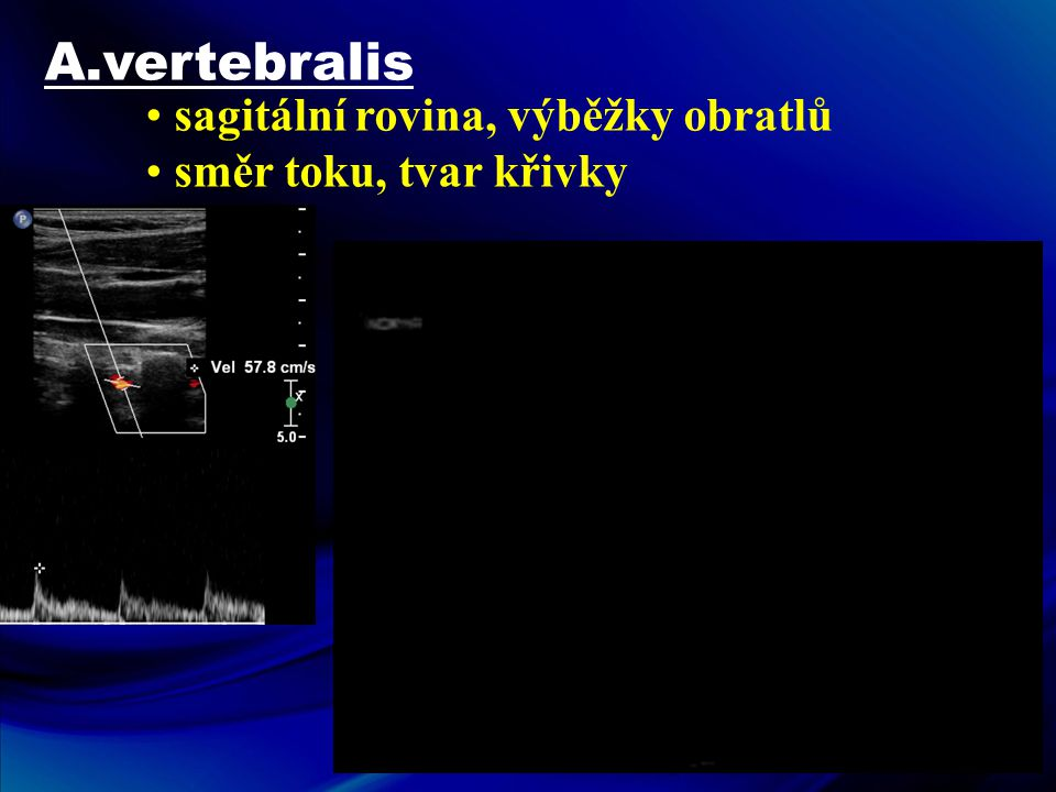 A.vertebralis • sagitální rovina, výběžky obratlů • směr toku, tvar křivky