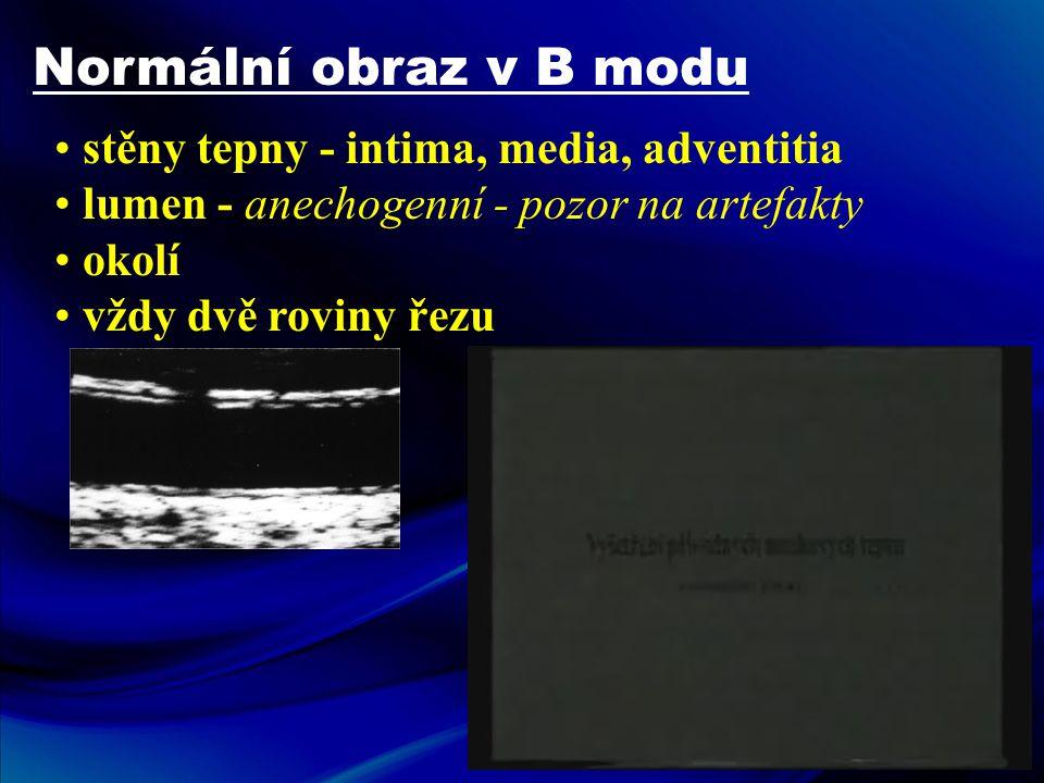 Normální obraz v B modu • stěny tepny - intima, media, adventitia • lumen - anechogenní - pozor na artefakty • okolí • vždy dvě roviny řezu