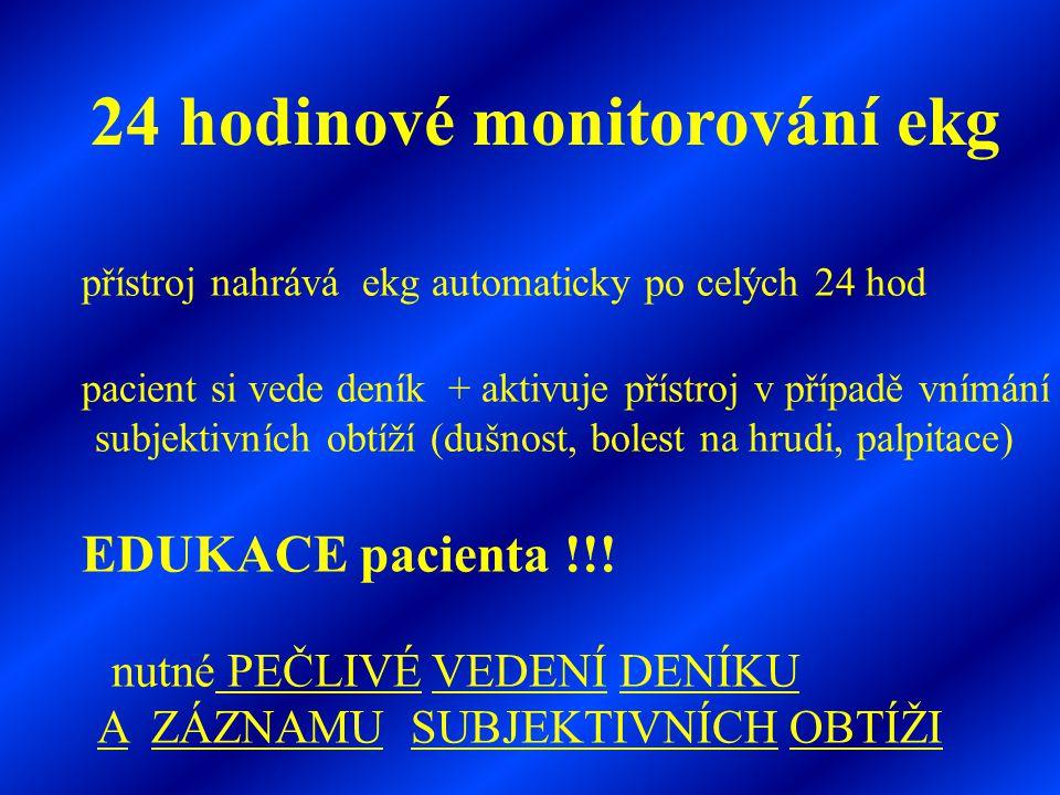 24 hodinové monitorování ekg přístroj nahrává ekg automaticky po celých 24 hod pacient si vede deník + aktivuje přístroj v případě vnímání subjektivní