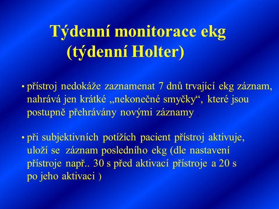 """Týdenní monitorace ekg (týdenní Holter) • přístroj nedokáže zaznamenat 7 dnů trvající ekg záznam, nahrává jen krátké """"nekonečné smyčky"""", které jsou po"""