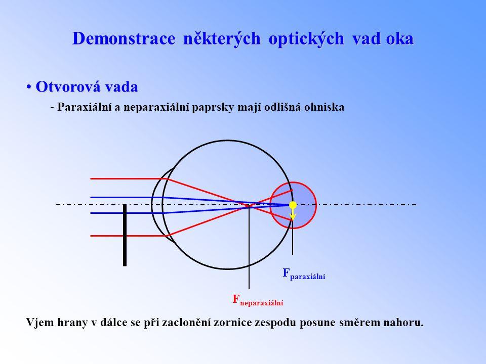 Demonstrace některých optických vad oka • Otvorová vada - Paraxiální a neparaxiální paprsky mají odlišná ohniska F neparaxiální F paraxiální Vjem hran