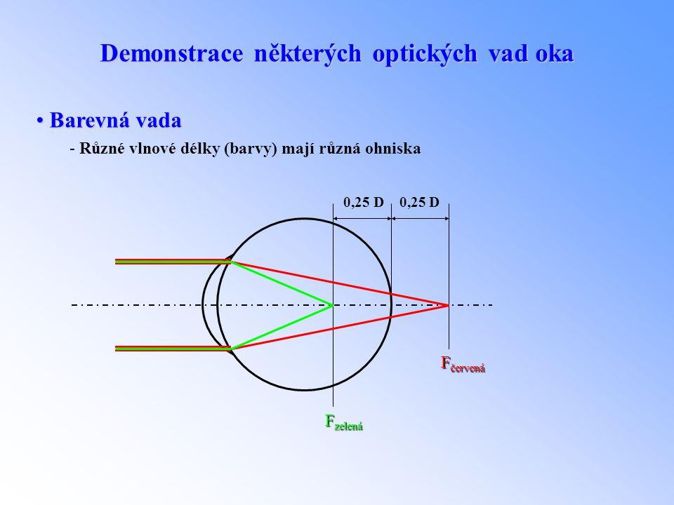 Demonstrace některých optických vad oka • Barevná vada - Různé vlnové délky (barvy) mají různá ohniska F červená F zelená 0,25 D 0,25 D