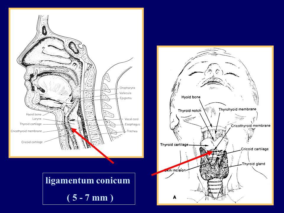ligamentum conicum ( 5 - 7 mm )