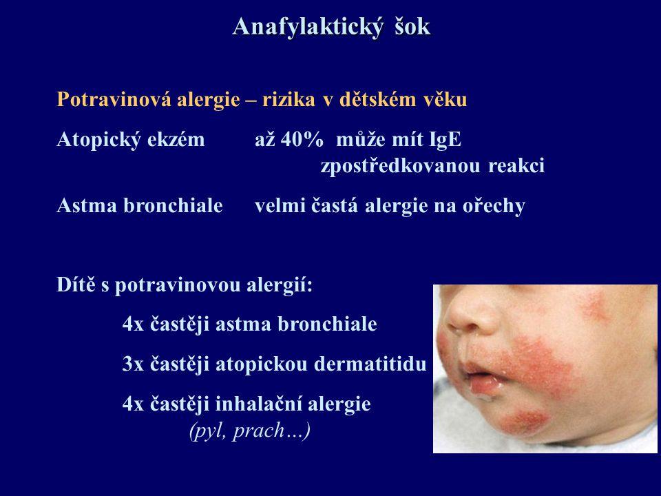 Anafylaktický šok Potravinová alergie – rizika v dětském věku Atopický ekzém až 40% může mít IgE zpostředkovanou reakci Astma bronchialevelmi častá al