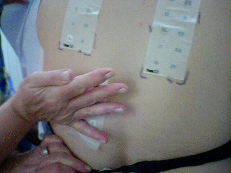 Alergie na latex l Kontaktní typ - aditiva l Časný typ - Hev b1 - Hev b 10