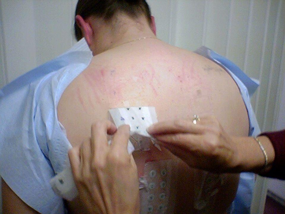 Alergie na latex l Diagnostika - kožní testy - stanovení specifických IgE protilátek l Řešení - hypoalergenní výrobky
