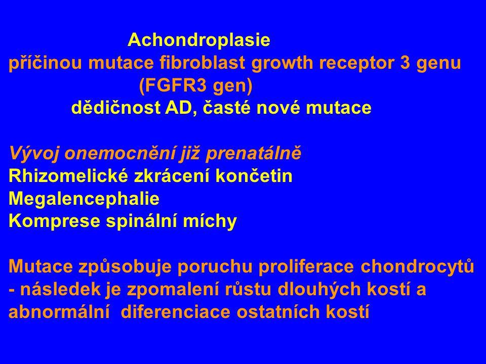 Achondroplasie příčinou mutace fibroblast growth receptor 3 genu (FGFR3 gen) dědičnost AD, časté nové mutace Vývoj onemocnění již prenatálně Rhizomelické zkrácení končetin Megalencephalie Komprese spinální míchy Mutace způsobuje poruchu proliferace chondrocytů - následek je zpomalení růstu dlouhých kostí a abnormální diferenciace ostatních kostí
