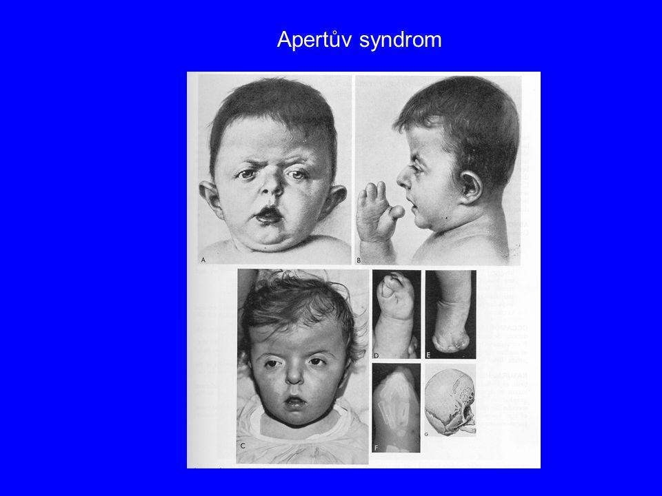 Apertův syndrom