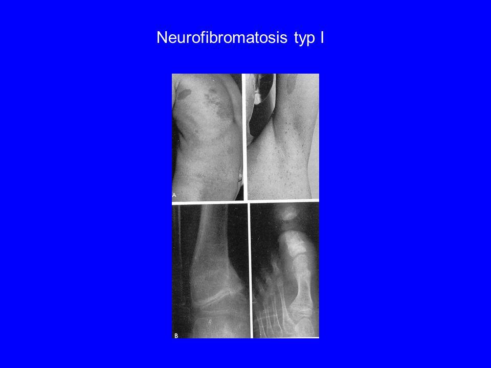 Neurofibromatosis typ I