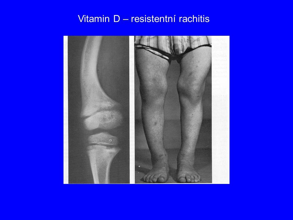 Vitamin D – resistentní rachitis