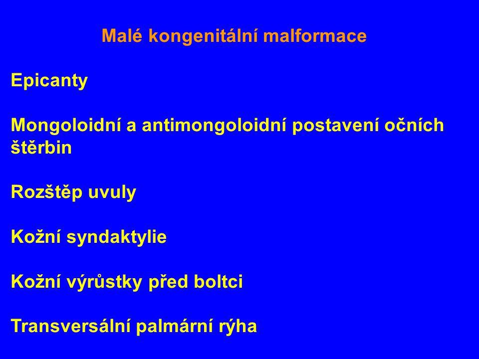Malé kongenitální malformace Epicanty Mongoloidní a antimongoloidní postavení očních štěrbin Rozštěp uvuly Kožní syndaktylie Kožní výrůstky před boltci Transversální palmární rýha