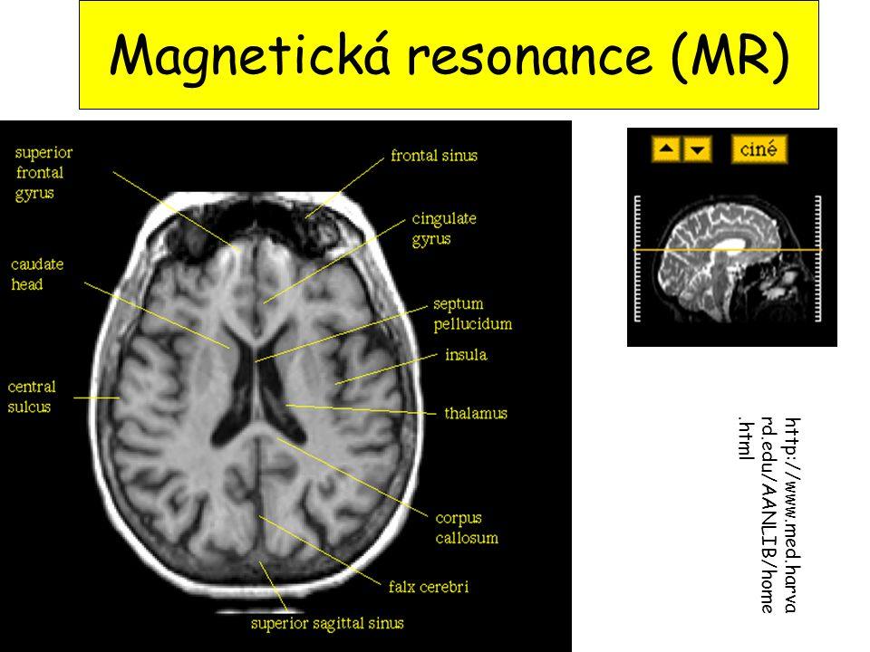 Magnetická resonance (MR) http://www.med.harva rd.edu/AANLIB/home.html